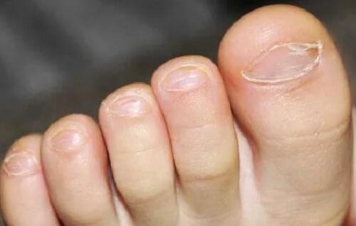 Как лечить грибок ногтей на ногах у детей фото