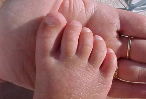 Грибок ногтей у детей комаровский