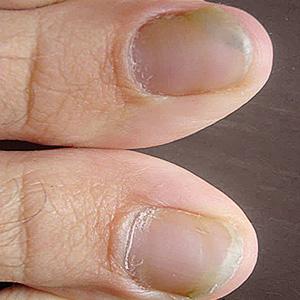 симптомы грибка на ногах