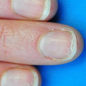 грибок на пальцах ног симптомы