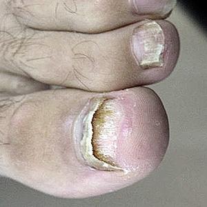 запущенный грибок ногтей на ногах фото