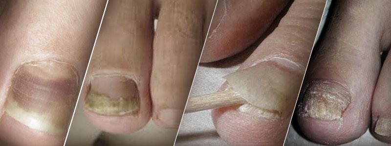 грибок на ногах фото симптомы
